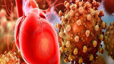 Photo of COVID-19 vinculado al daño cardíaco