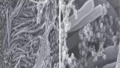 Photo of SARS-CoV-2 llena las vías respiratorias es mortal